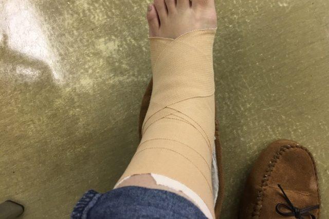 ねんざとは靭帯が切れていることである。